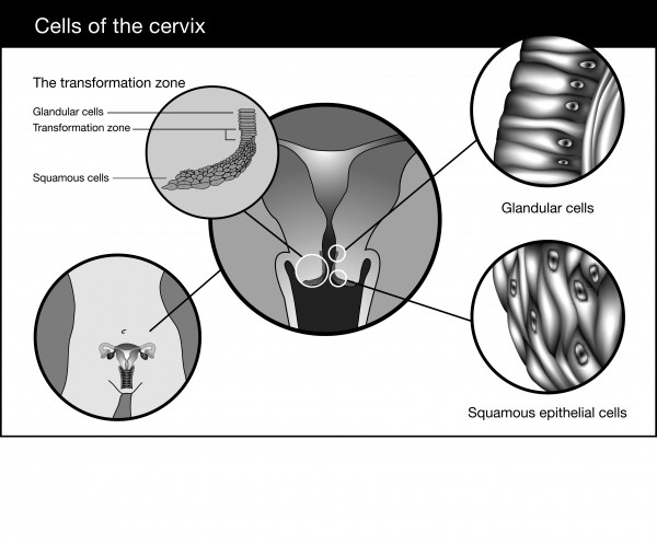 cervix diagram picture