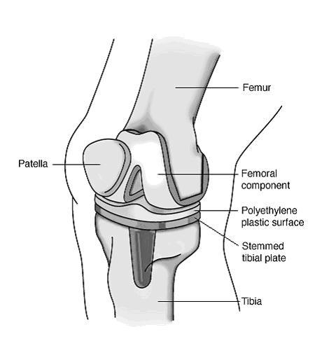diagram of knee pain diagnosis
